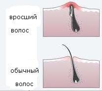 Как сделать так чтобы волосы не росли в зоне бикини